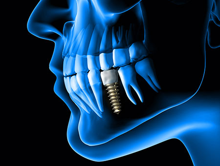 Anatomy of human jaw in blue x-ray highlighting the dental implant.